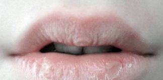how to cure chapped lips