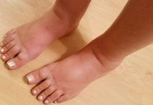 how to treat swollen feet