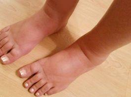 how to treat swollen feet