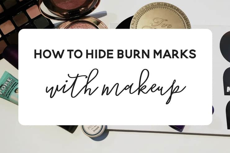 How To Hide Burns