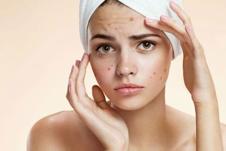 Benefits of Baking Soda - Baking Soda for Acne