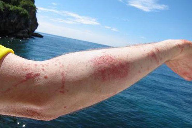 Jellyfish stings Look Like