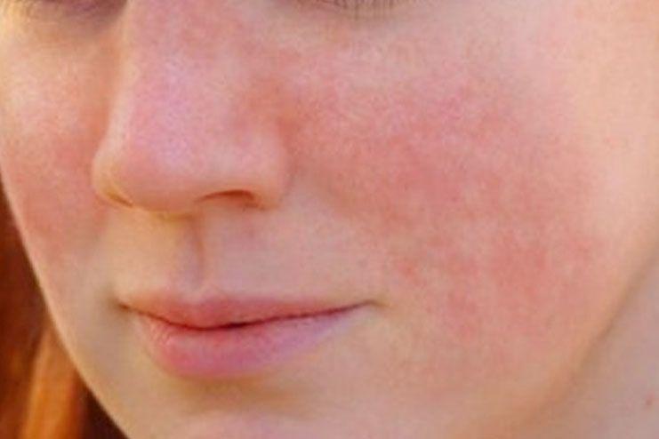 lupus - photo #9