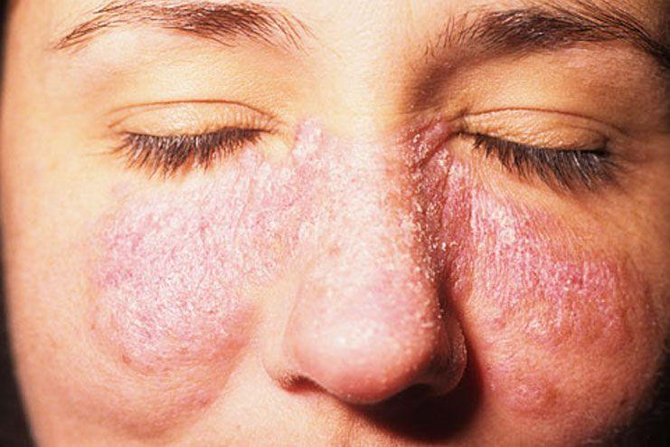 lupus skin rash