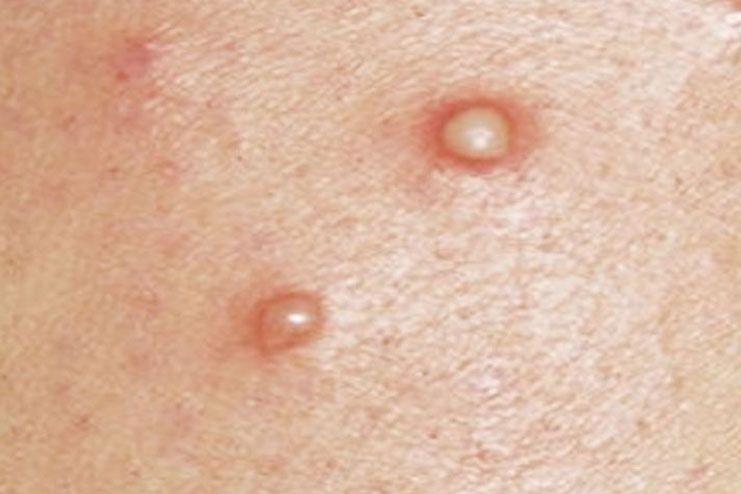 Pimples-On-Labia02