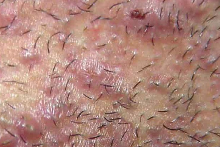 Pimples-On-Labia05