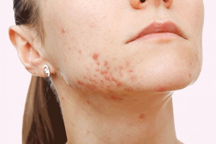 26 Natural ways to treat cystic acne