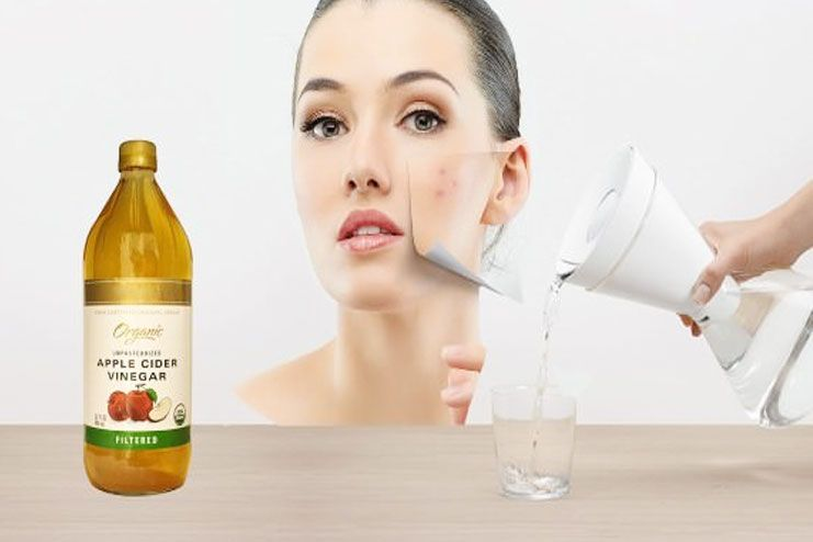 Natural Ways To Prevent Cystic Acne