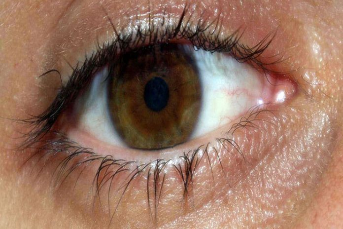 Eye Floaters And Flashes