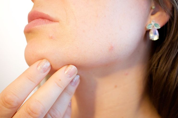 Pimples and dark spots