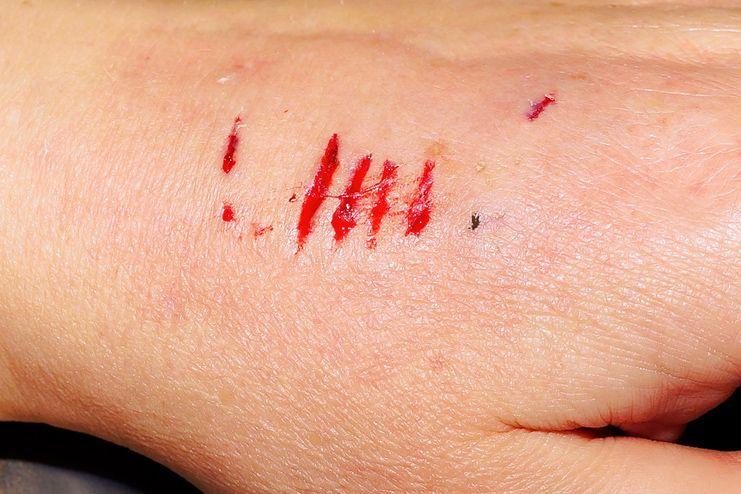 Aloe Vera heals wounds
