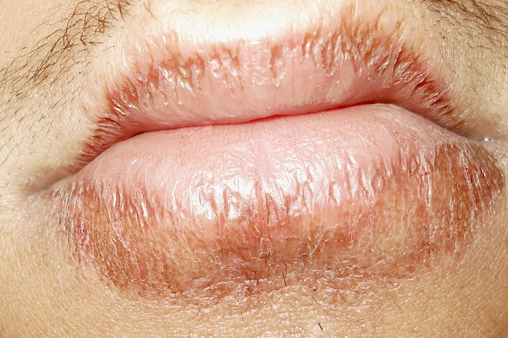 Aloe vera for healing chapped lips