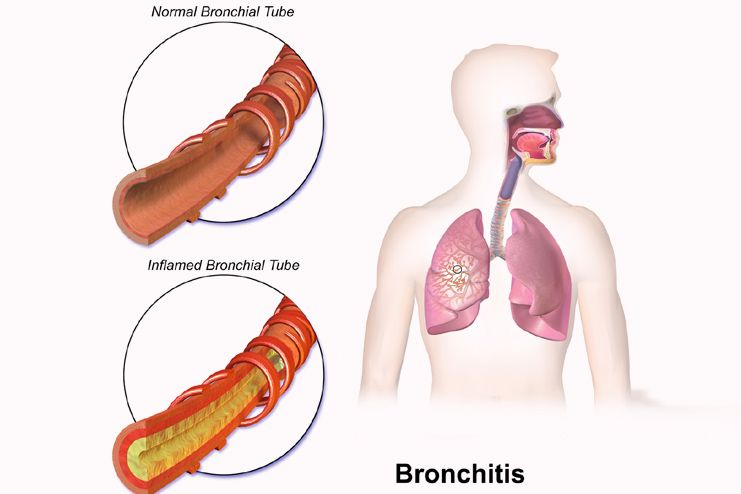 Honey and cinnamon helps treat bad breath and bronchitis
