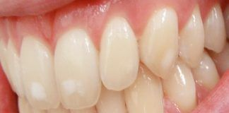 removal of white patches from teeth