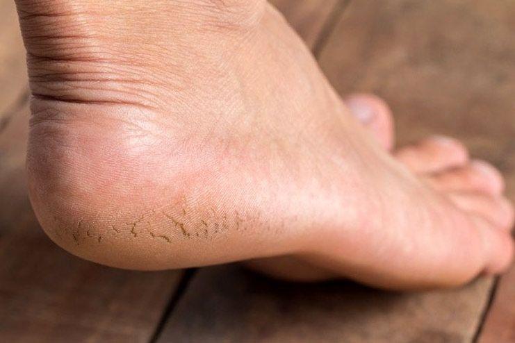 Oils for cracked feet