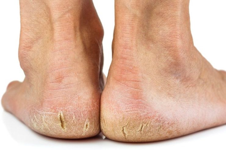 What are the symptoms of cracked heels