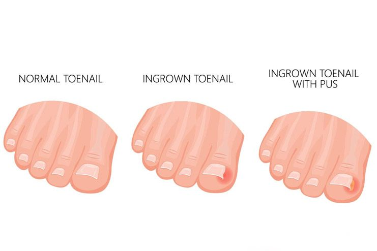 What is an ingrown toenail