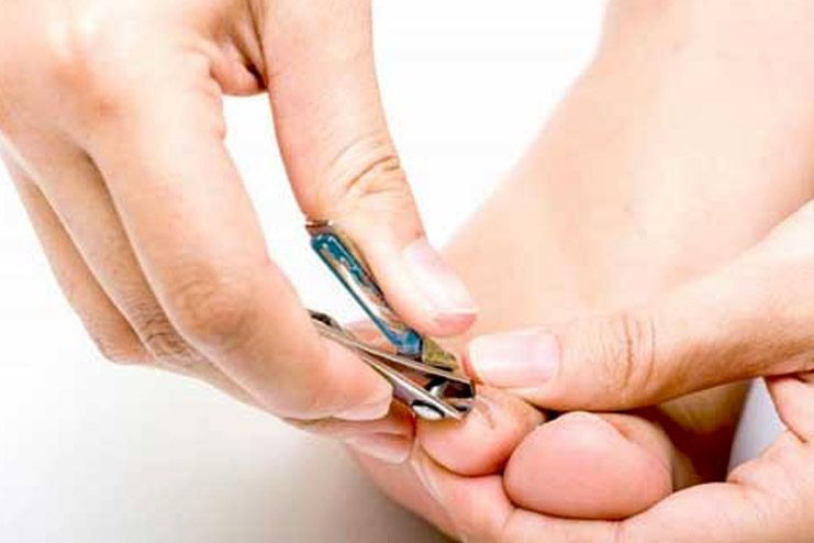 How to cut ingrown toenail