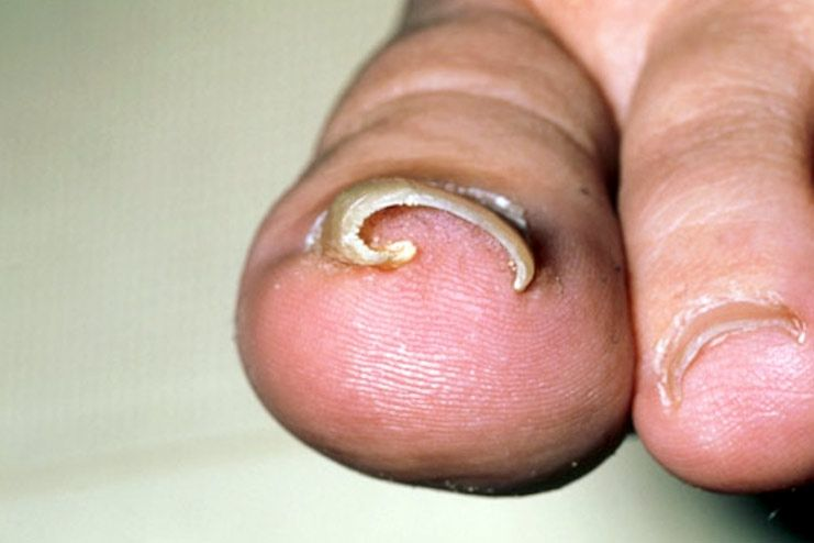 What causes ingrown toenail
