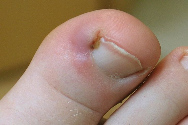 What are the symptoms of ingrown toenails