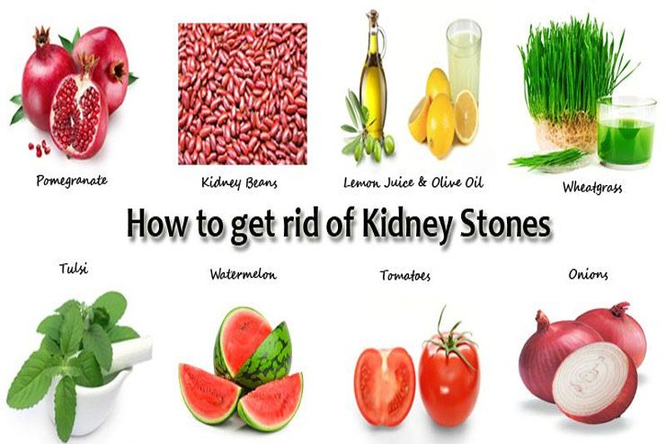 25 Easy Natural Remedies For Kidney Stones That Can Help Flush It Out Without Pain