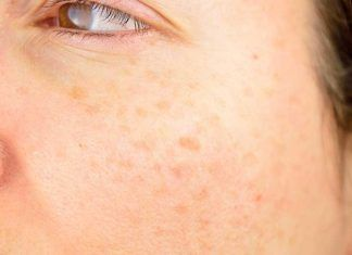 Skin-Blemishes01