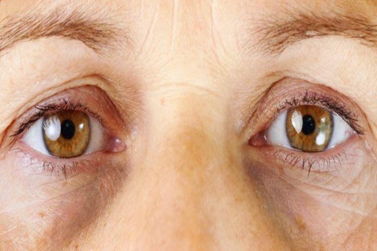 Symptoms of dark circles