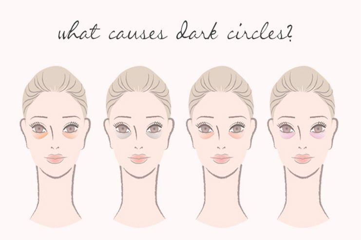What causes dark circles