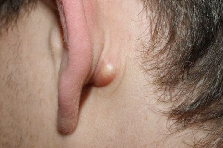 What is sebaceous cyst
