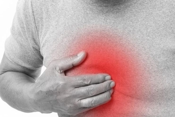 Acid Reflux and heartburn