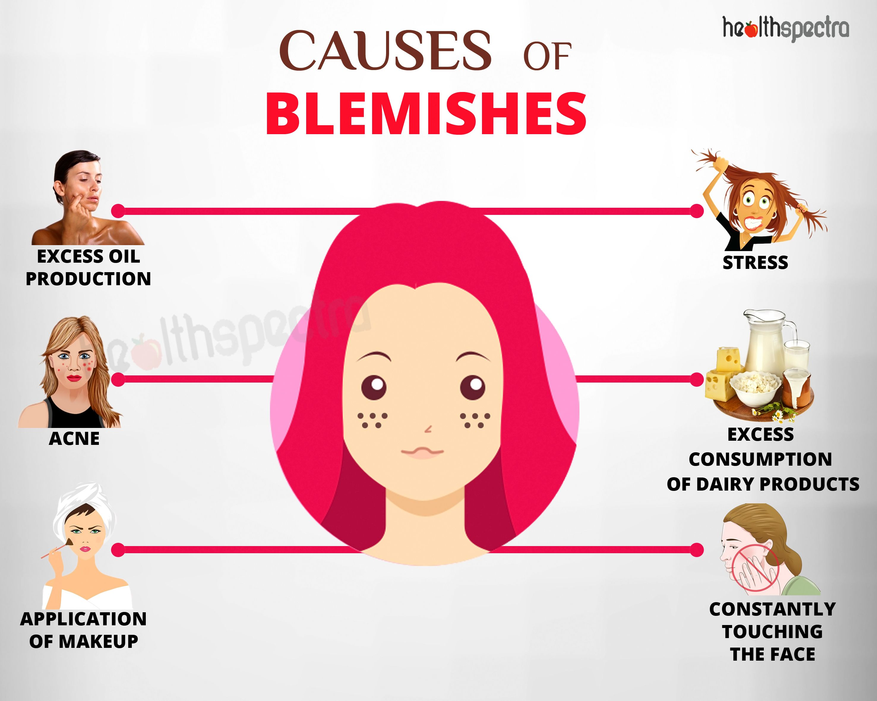 Causes of Blemishes