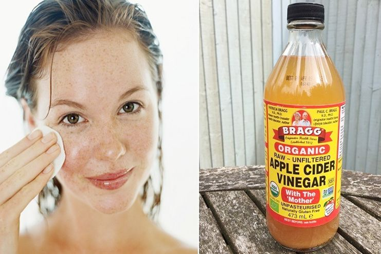 Facial Hair Removal with Apple cider vinegar