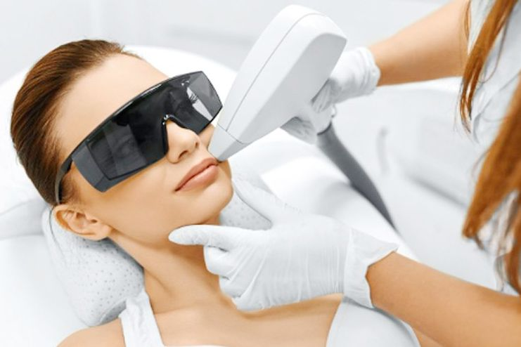 Facial Hair Removal with Laser treatment