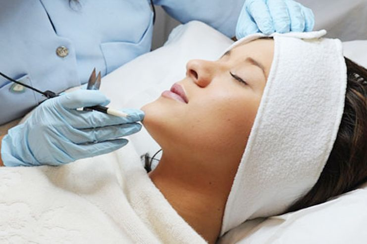 Facial Hair Removal with Electrolysis