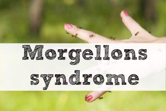 Morgellons