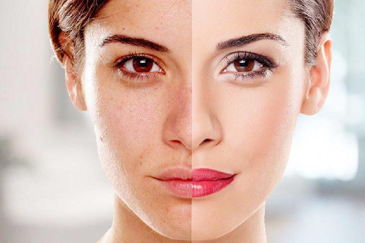 Pomegranate benefits for Skin whitening