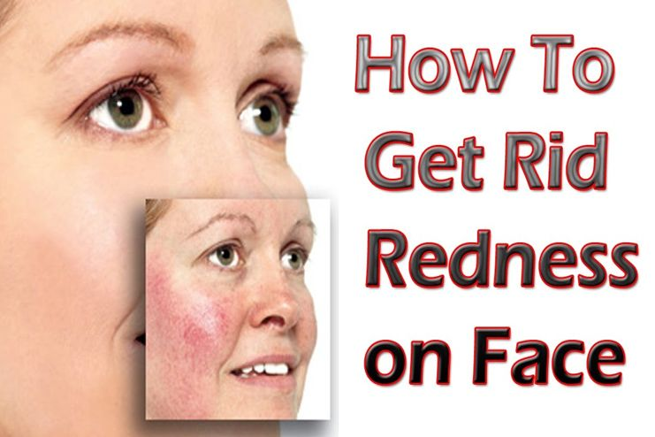 get rid of redness