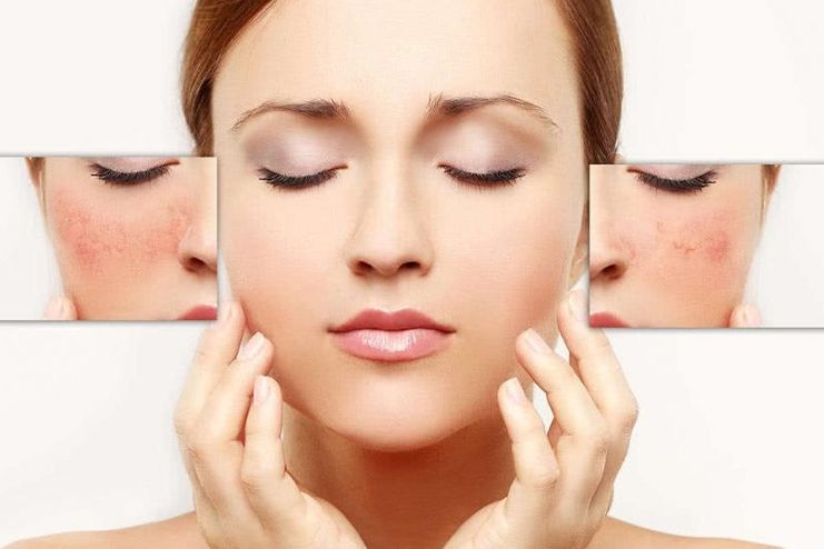Lifestyle tips to prevent facial redness