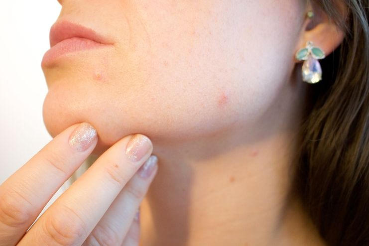 Benefits of Vitamin A for AcneBenefits of Vitamin A for Acne