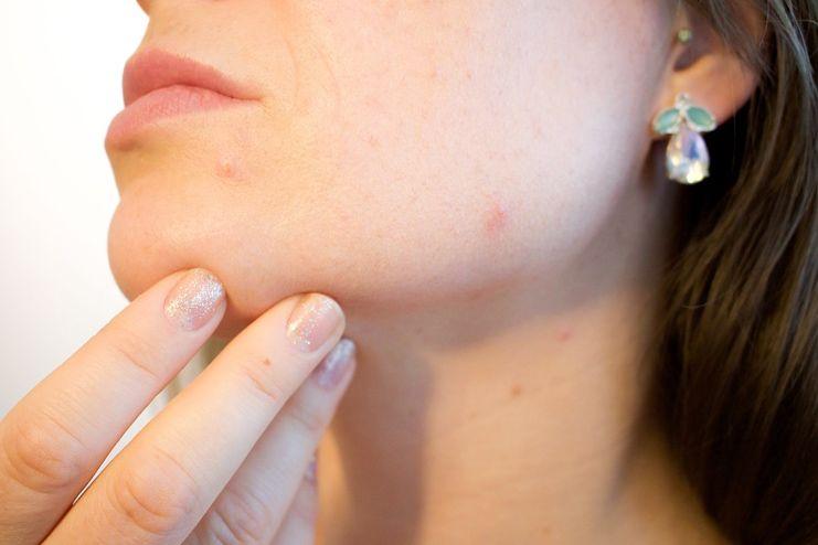 Benefits of Pistachio for Acne