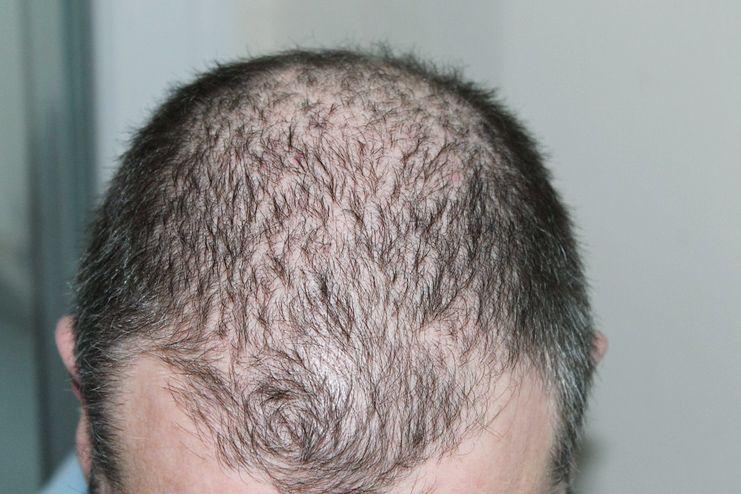 Pistachio for Hair Loss