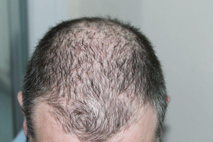 Vitamin A for Hair Loss and Hair Growth