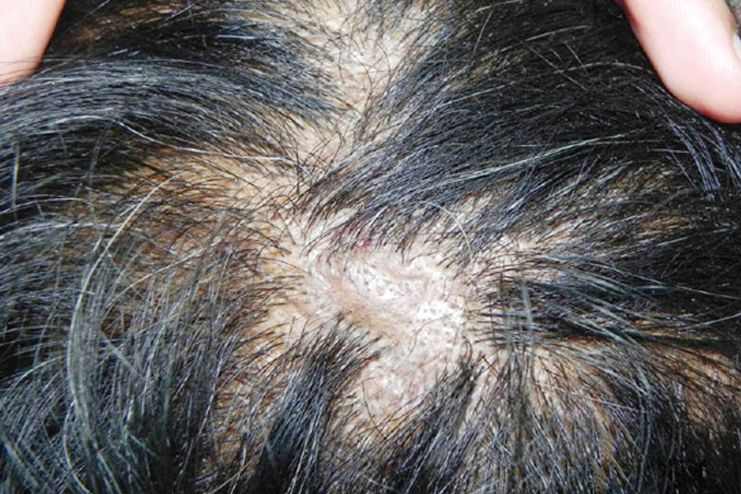 What causes scabs on scalp