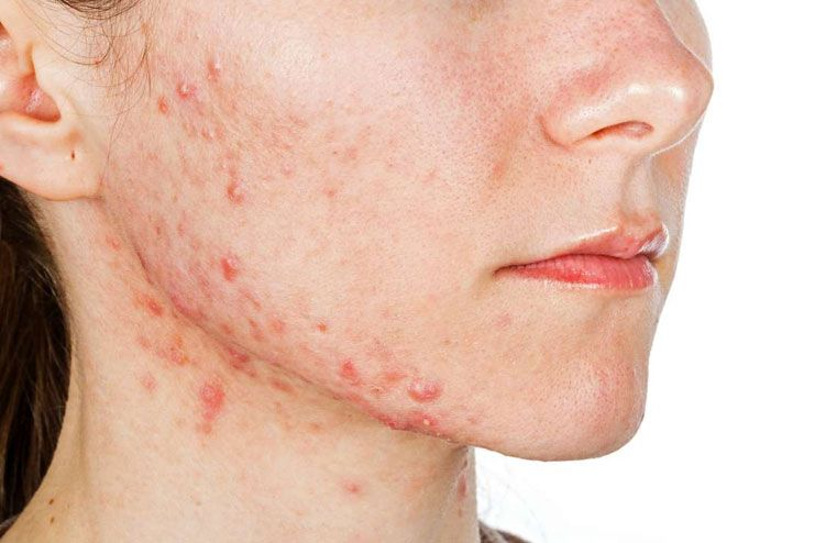 Hot Water for Acne