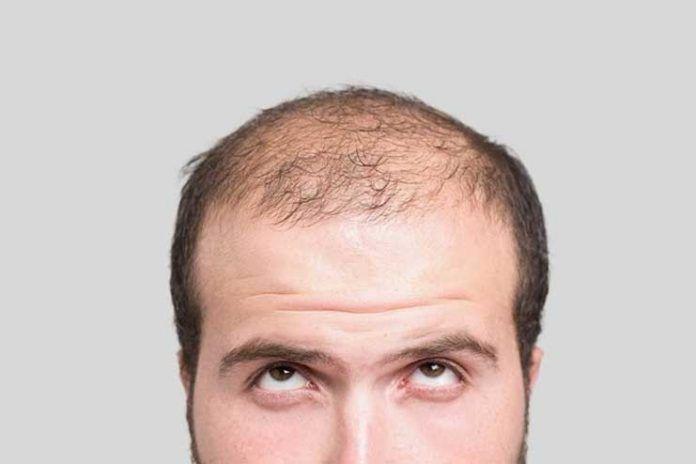 Hair loss and skin damage