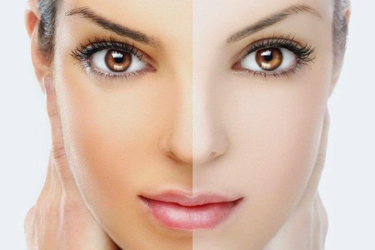 Vitamin C Serum for Skin Whitening