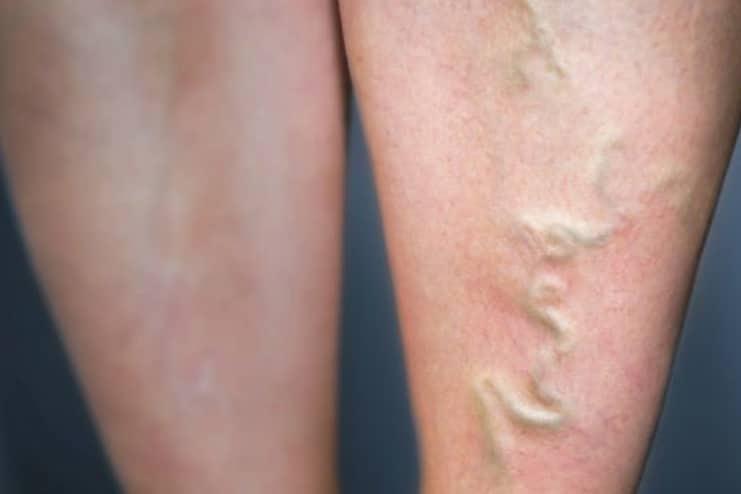 Risk factors of Varicose Veins
