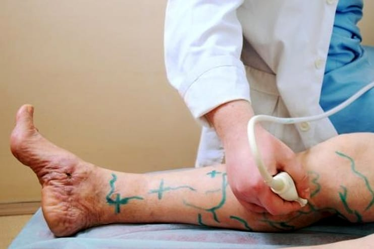 prevent tips for Varicose Veins