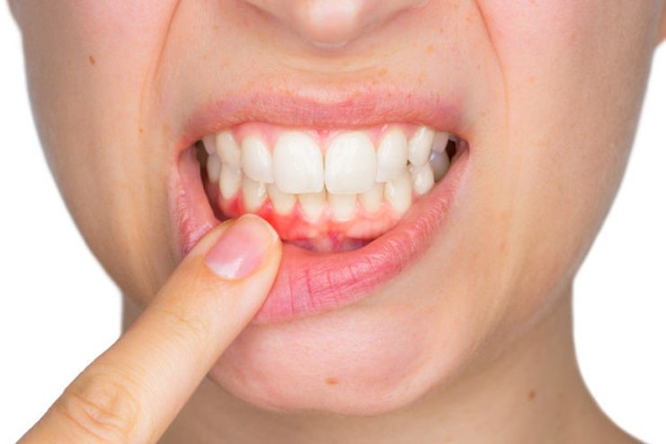 What causes abscess tooth