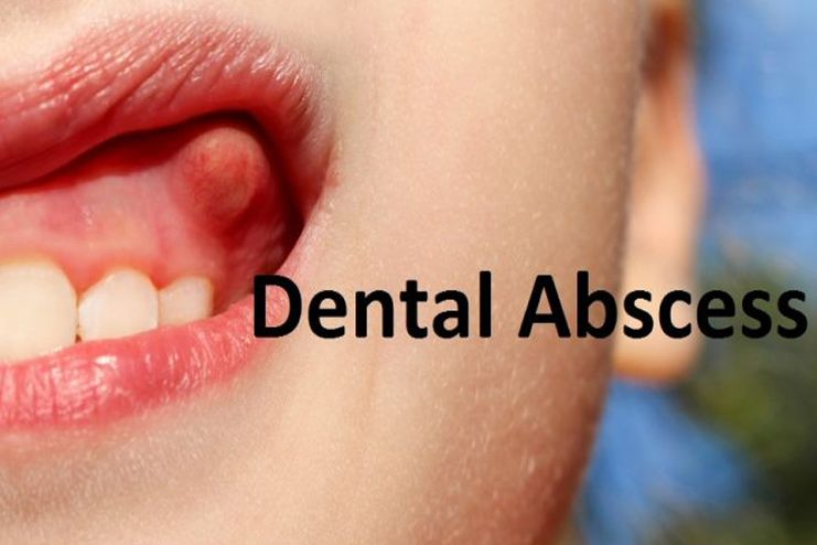 Symptoms Of Abscess Tooth